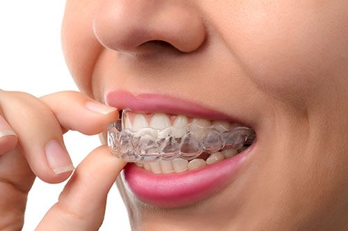 Invisalign Southern Dental Group